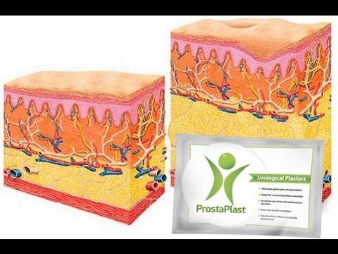 Prostaplast Gyógyszertár