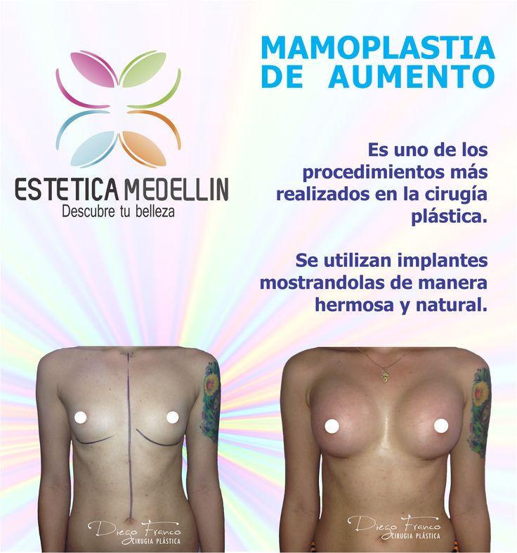 MAMOPLASTIA DE AUMENTO Es uno de los procedimientos más realizados en la cirugía plástica.  Se utilizan implantes mostrandolas de manera hermosa y natural. Pide YA TU CITA DE VALORACION WhatsApp 3218736882