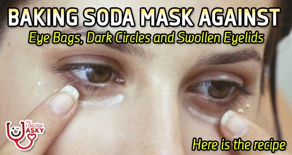 Baking Soda Mask Against Eye Bags, Dark Circles and Swollen Eyelids – Recipe