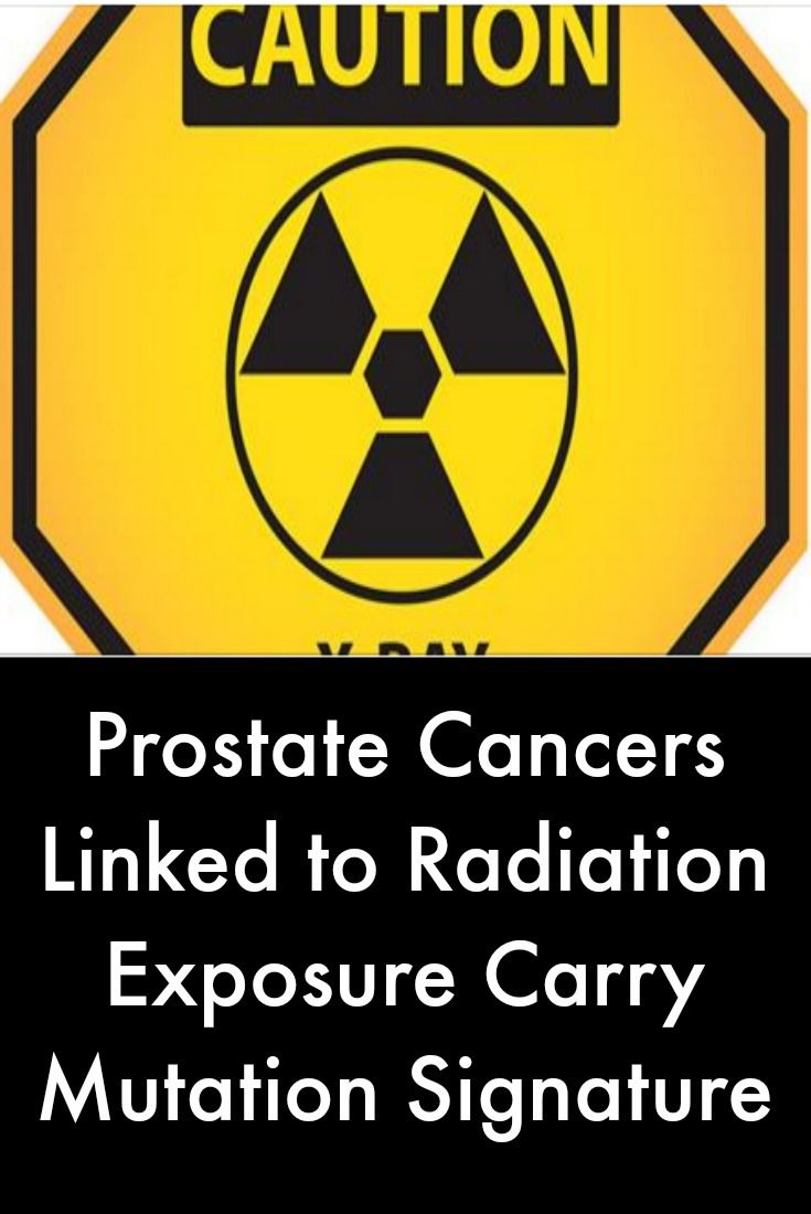 Chinese herbal treatments for prostate cancer metastisis to - Read About Distinct Dna Mutation Signatures Found In Cancers Including Prostate Cancer Caused By Exposure To Ionizing Radiation