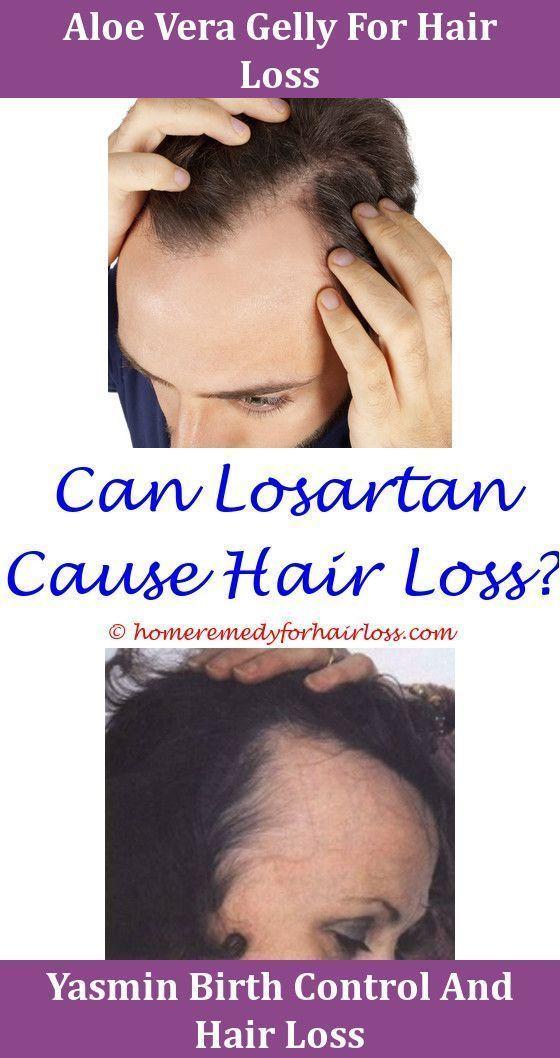 Hair Loss Treatment In Chennai Adyar,celebrity hair loss