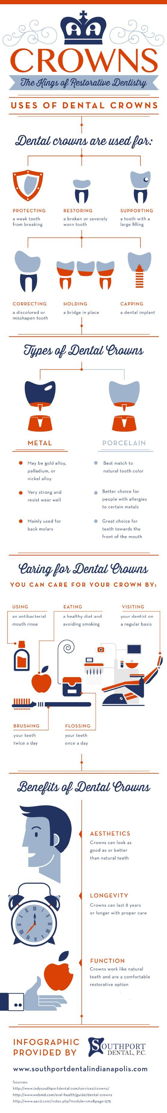Crowns: The Kings Of Restorative Dentistry #FrandsendDental