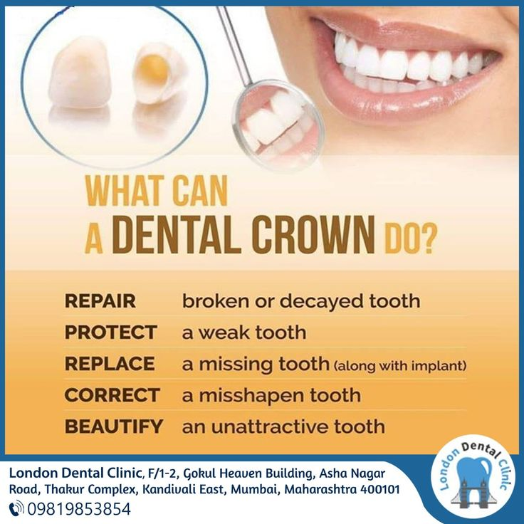 Dental crowns are fixed prosthetic restorations made to