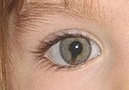 Coloboma - an eye condition, present from birth.  Madeleine's rare birth defect.  Hope it will help find her one day.