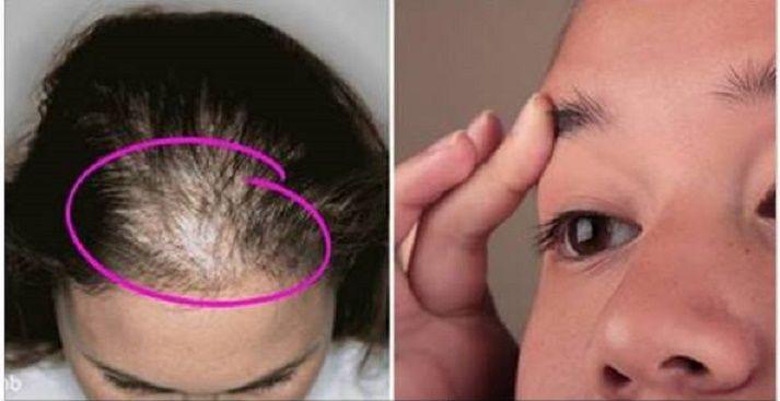 """Cabelo é um assunto importantíssimo para a maioria das mulheres.Basta o cabelo ficar """"rebelde"""" para que muitas mudem de humor.Para ajudar, vamos ensinar uma receita supereficiente.Já ouviu fala de óleo de rícino?"""