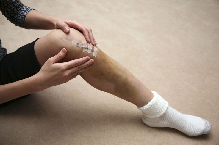 Your Meniscus May Be Able to Heal Itself Without Surgery