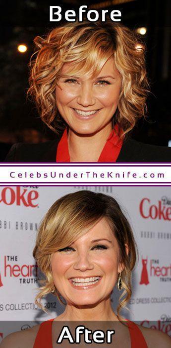 Jennifer Nettles Nose Job Procedure Results #celebsundertheknife #celebs #celebrity #plasticsurgery #celebritysurgery
