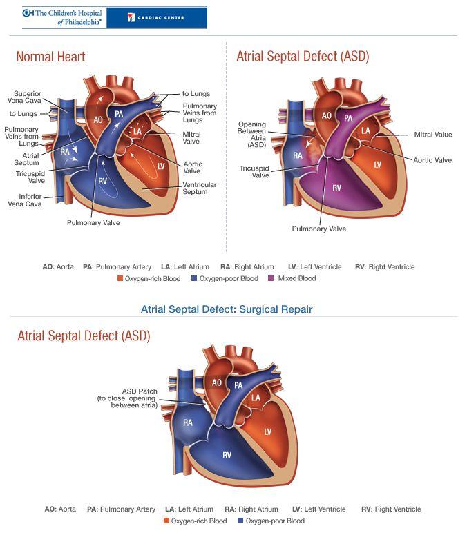 40 best Ventricular Septal Defect (VSD) images on Pinterest ...