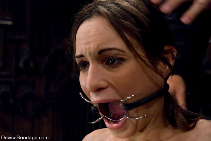 augsburg openmouth gag