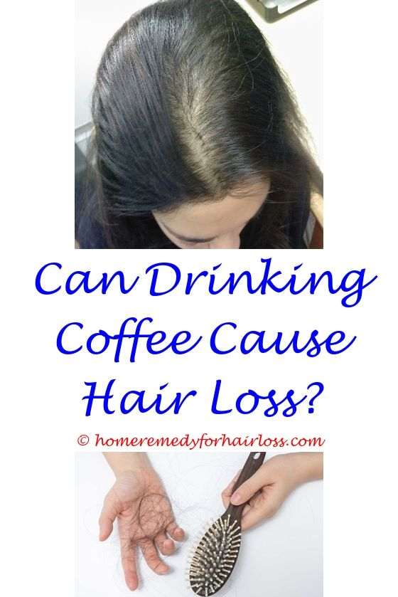 Hair Loss And Treatment Hair Loss Female Hair Loss And Female Hair