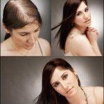 Tratamiento para el crecimiento de cabello femenino