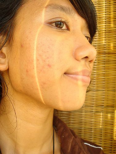 Get rid of pimples fast home remedies