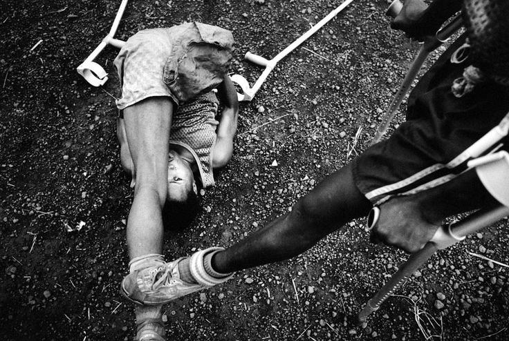 "Pep Bonet. ""One Goal - Amputees football field at the MSF camp (Murray Town) stretching before the match - Sierra Leone's amputees are a grim legacy of its 1991-2001 civil war. One of the most brutal aspects of the conflict was the use of amputation..."