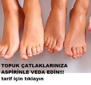 Ayaklarınızdaki çatlak ve nasırlardan kurtulup yumuşacık ayaklara sahip olmak için bir de aspirini deneyin. Yüz ve cilt bakımınıza dikkat ettiğiniz kadar ayak bakımınıza da gerekli önemi göstermeniz gerekiyor. Üstelik tüm günün yorgunluğunu ayaklarınızın çektiğini düşündüğünüzde aslında en çok onların bakıma ihtiyacı var. Ayak bakımı için pek çok yöntem var tabii ki. Bu sefer sizlerle aspirin formülünü paylaşmak istedik. İşte yumuşacık ayaklar için yapmanız gereken: Yatmadan önce bir ad...