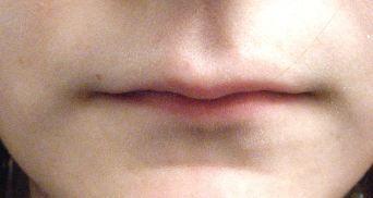 Very thin lips