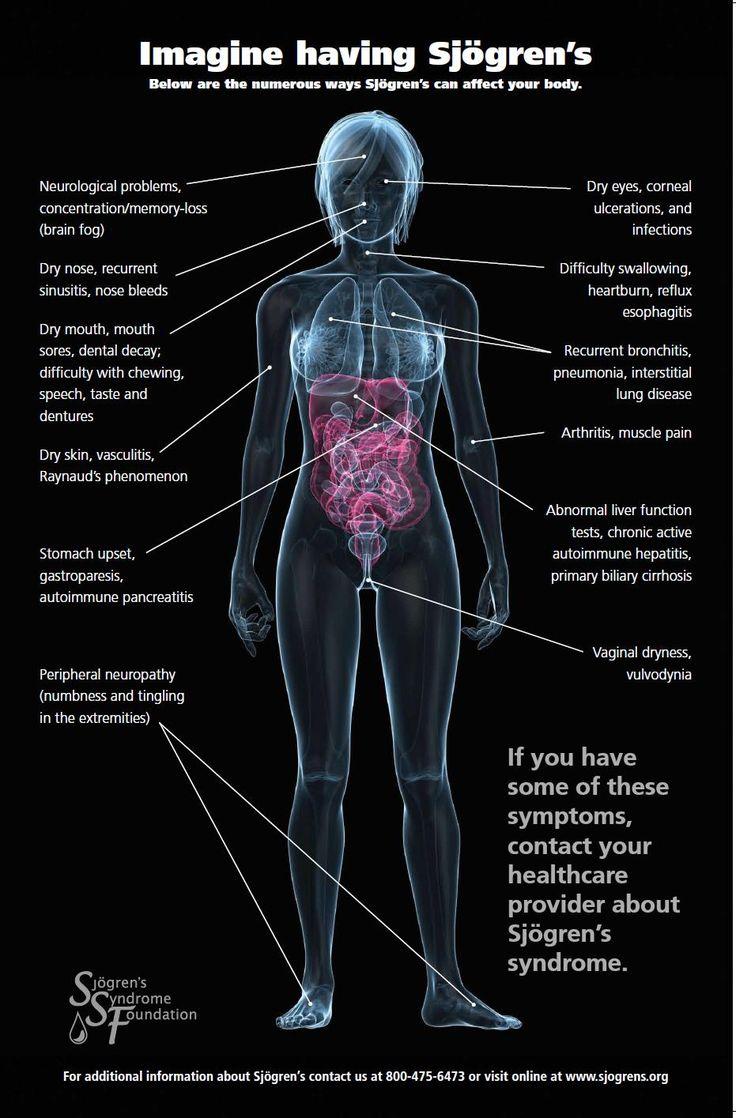 imagine having sj u00f6gren u2019s  these are the numerous ways sj u00f6gren u2019s can affect your body