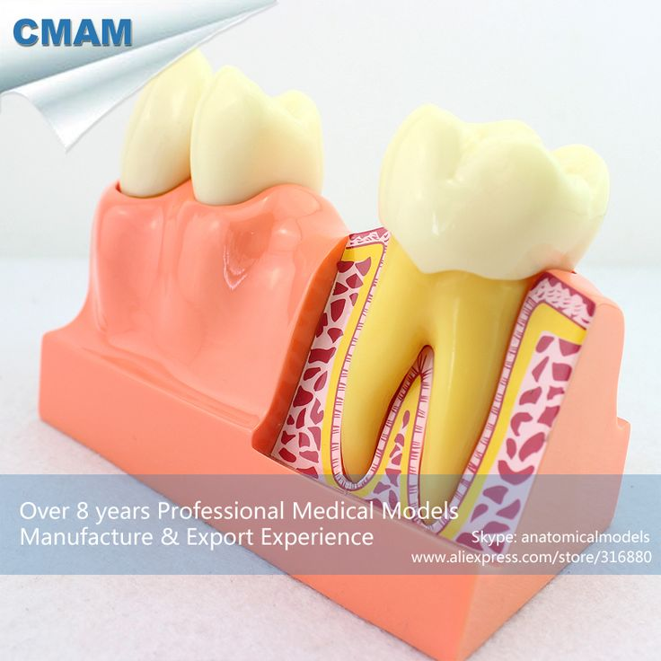 CMAM-TOOTH21 Oversize 4 Times Permanent Teeth Anatomy Model, Medical Science Educational Teaching Anatomical Models