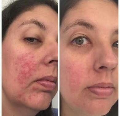 Rodan and Fields help so many people with their skin concerns!! gwendab2@gmail.com