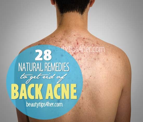28 Effective Home Remedies for Back Acne | Beauty and MakeUp Tips