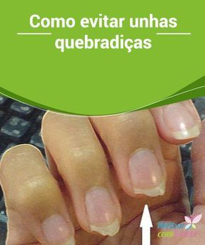 Como evitar unhas #quebradiças Um dos #problemas mais comuns das mulheres é as #unhas #frágeis, que se quebram sem razão aparente e que fazem com que as mão fiquem