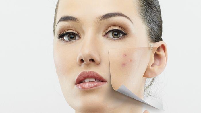 Como acabar com as espinhas, como tirar manchas do rosto, espinha interna, acne, limpeza de pele,asepxia, isotretinoina,    Nós todos quer...