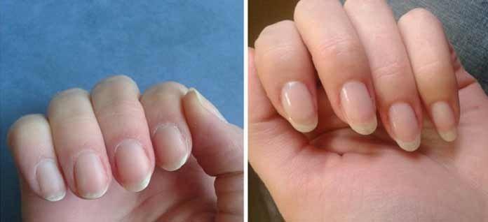 Как быстро отрастить ногти в домашних условиях | Сами Доктора