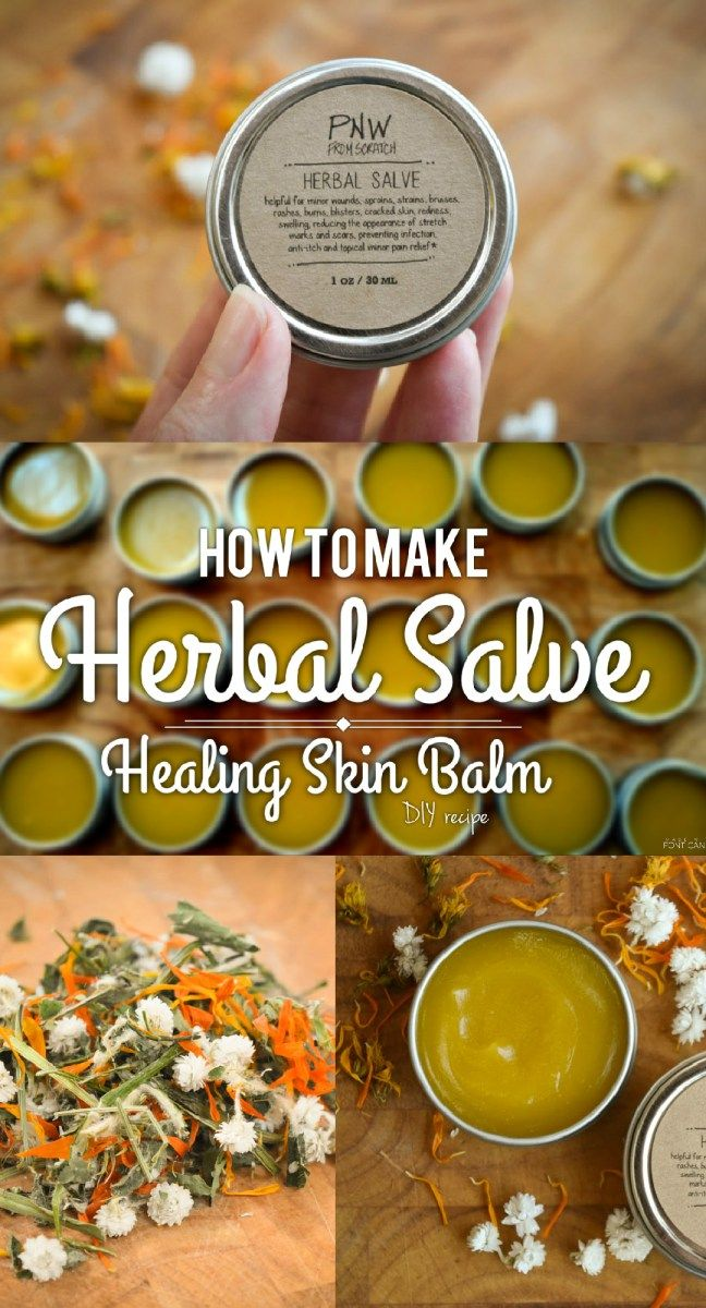 A healing herbal skin balm recipe that is helpful for minor wounds, sprains, strains, bruises, rashes, burns, blisters, cracked skin, redness, swelling, reducing the appearance of stretch marks and scars, preventing infection, anti-itch, and topical minor pain relief.