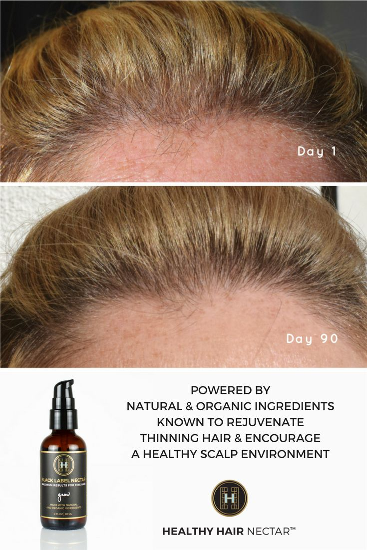 how to make thinning hair grow back