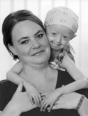 Progerie: 17-jährige Hayley Okines starb im Körper einer 100-Jährigen Hayley Okines  #HayleyOkines