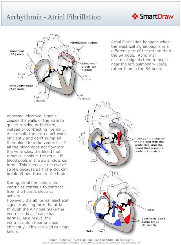 atrial fibrillation causes pathophysiology and treatment essay Essay add: 22-10-2015 basic pathophysiology of atrial fibrillation the order of stimulation is what causes correct contraction of the heart.