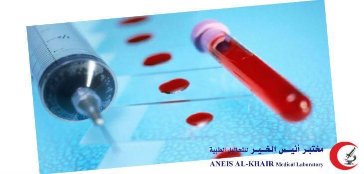 تحليل الحمل بالدم تحليل الدم للكشف عن الحمل تحليل الحمل بالدم متى يظهر تحليل الحمل بالدم هل يخطئ قراءة تحليل الحم Medical Laboratory Cooking Timer Medicine