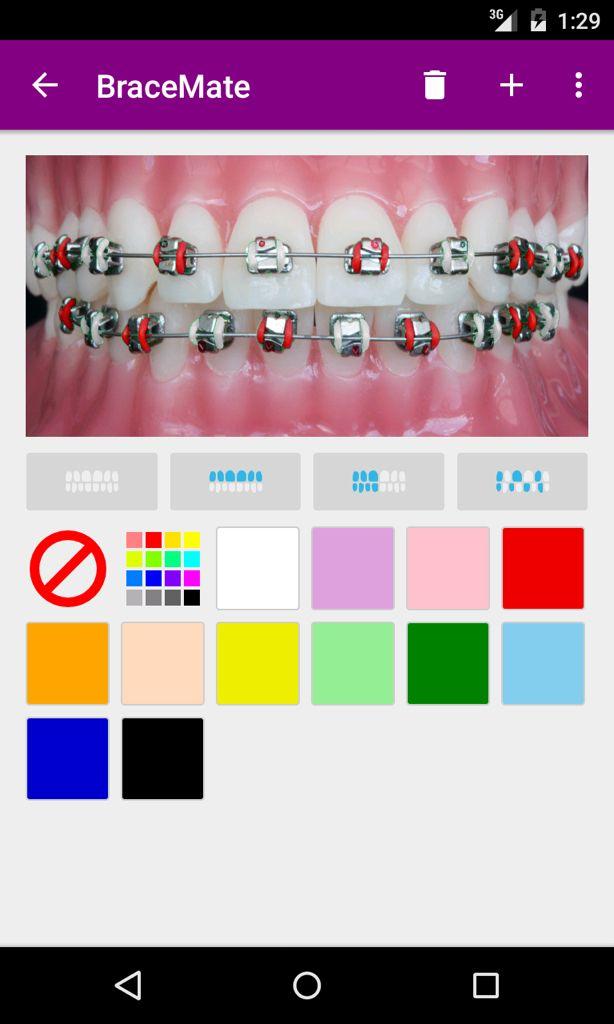 BraceMate dalam bahasa #Melayu - untuk pakar #ortodontik