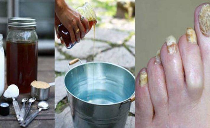 Tento super jednoduchý recept vás navždy zbaví mykózy nechtov na nohách - Báječný lekár
