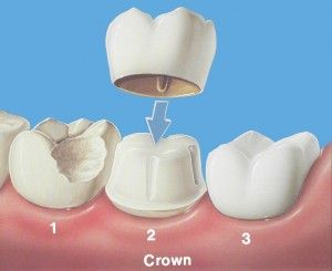 What Are Dental Crowns?,  cosmetic dental treatments, crowns, dental crowns, dental treatment