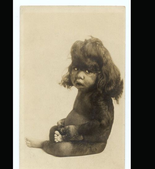 Hairy baby     In the 1860s, a photographer named Charles Eisenmann photographed thousands of circus freaks.