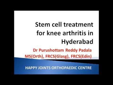 Stem cell treatment for knee arthritis in Hyderabad 9246118509 - WATCH VIDEO HERE -> http://arthritisremedy.info/stem-cell-treatment-for-knee-arthritis-in-hyderabad-9246118509/     *** how to treat arthritis ***  Stem cell treatment offers a good alternative to joint replacement surgery in early cases of osteoarthritis of knee. We at HAPPY JOINTS  ORTHOPAEDICS are pioneering the new technique. Video credits to the YouTube channel owner