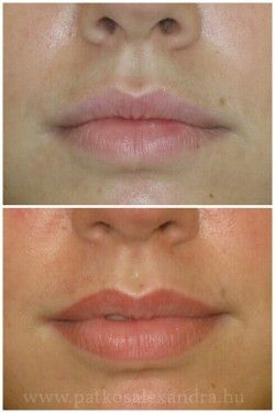 how to make big lips smaller permanently