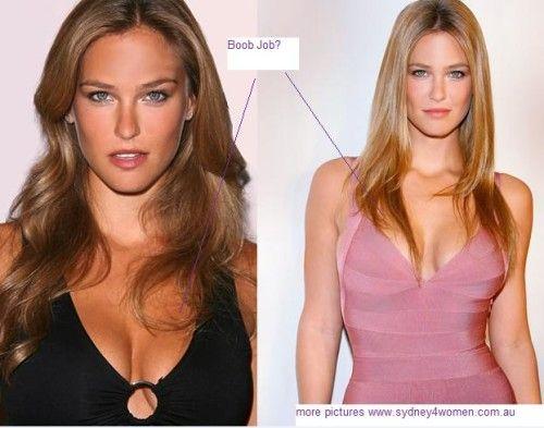 Scarlett Johansson Plastic surgery - Breast Reduction ...