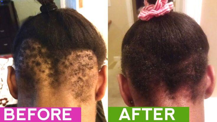 25 Gorgeous Bald Spot Treatment Ideas On Pinterest