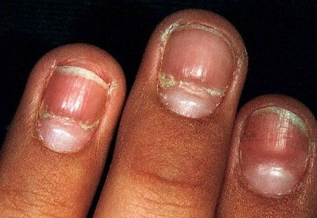 Common nail problems and natural remedies: http://positivemed.com/2013/06/06/common-nail-problems-and-natural-remedies/