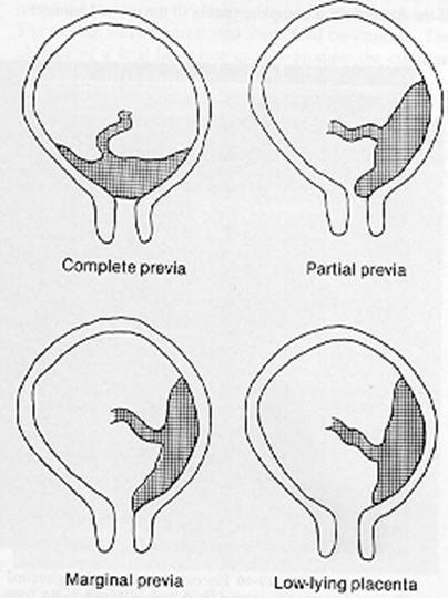 Placenta Previa / placenta locations