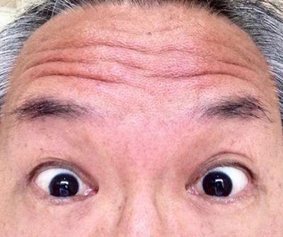 こんにちは。私は下北沢で鍼灸指圧整体の治療院を開業していますが、エステ・美容の...