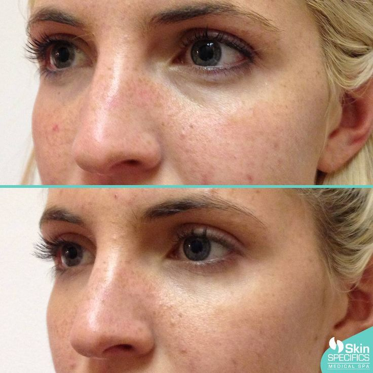 Mid face and undereye/tear trough area was layered with Juvederm and Restylane using a cannula method to lift and fill making this client look rejuvenated.  There is expected swelling the first few days. This Photo was taken 4 weeks following the procedure. The mid face and tear trough are often treated at the same time and needs multiple syringes of filler over time to create the best results. On occasion the tear trough can be treated alone and will suffice. You and your injector must…