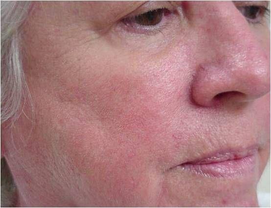 Laserbehandeling bij Couperose / Rosacea : voor en na fotos