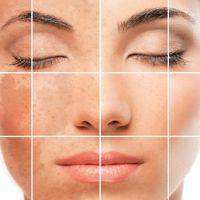 Eliminación de manchas faciales.