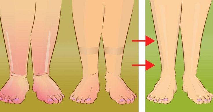 Dites adieux aux jambes enflées, cette simple astuce vous débarrassera de toute la rétention d'eau dans votre corps!