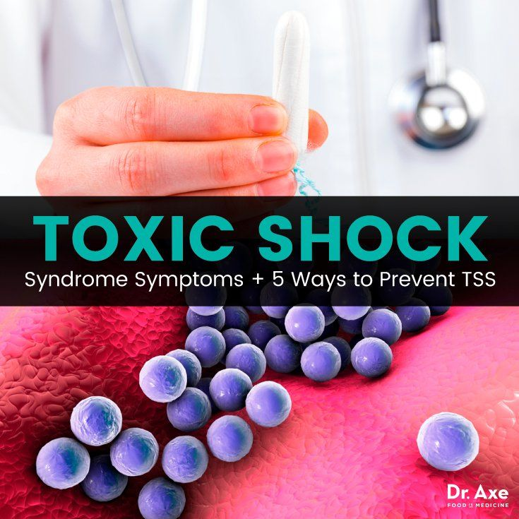 According to the Mayo Clinic, approximately halfof all cases of toxic shock syndrome caused by staphbacteria occur in women of menstruating age. Toxic shock syndrome or TSS is often thought to be a health problem that only affects women, menstruating women to be exact, like the 20 year old woman who accidentally left a tampon …