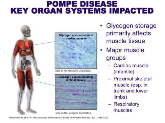 pompe disease causes and symptoms Category: muscle disorders published january 12, 2018 by pup symptoms of duchenne muscular dystrophy: pompe disease in adults: causes, symptoms & treatment options pompe disease is a hereditary neuromuscular disease affecting infants.