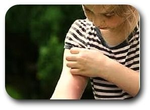 Basic First Aid Tips and Information For  Insect Bites and Stings...Insect bites and stings are generally easy to treat at home. However, the effects to individuals who have severe allergic reactions to such bites and stings can be serious enough to require emergency professional help.