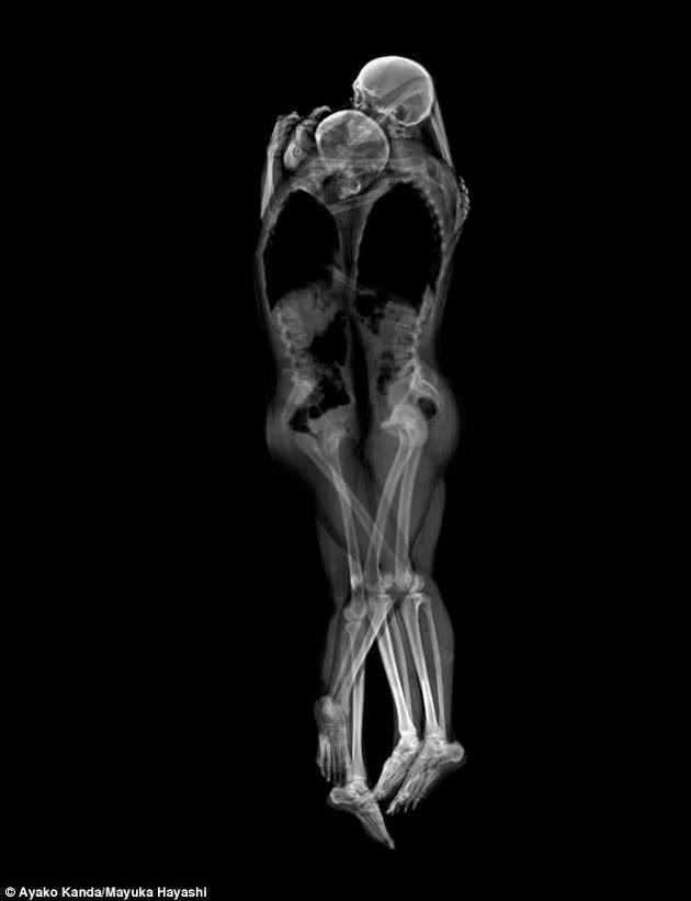 COCÓ MODÍ: Jóvenes huesos en colchòn
